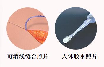 韩国假体隆胸技术如何消除疤痕
