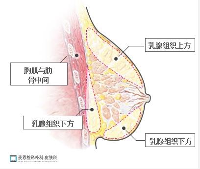 韩国自体脂肪移植丰胸手术的技术