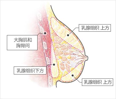 breast02-img2.jpg