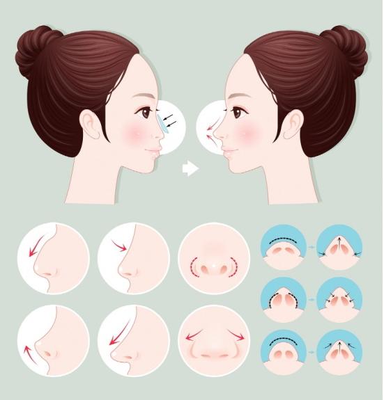 鼻子整形,鼻梁及鼻翼缩小和鼻子微整等全效手术