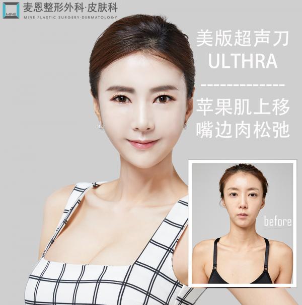 美版超声刀Ulthera锁住青春,美丽焦点韩国麦恩整形
