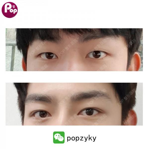 瘢痕体质能做双眼皮吗?——韩国POP整形外科