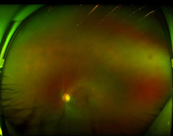 佛山爱尔眼科化疗佛山首例存致死率的罕见淋巴瘤