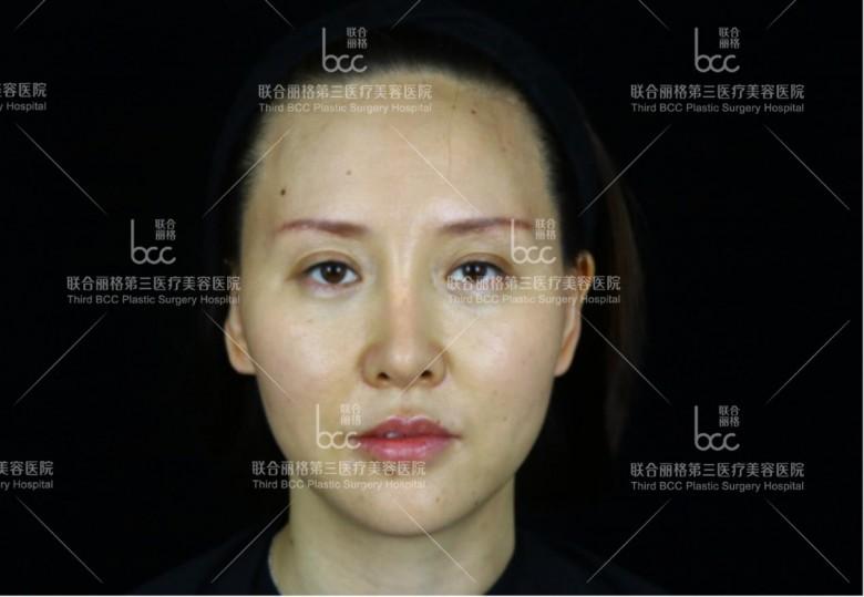 天津联合丽格鼻整形怎么样?天津联合丽格鼻整形好吗?
